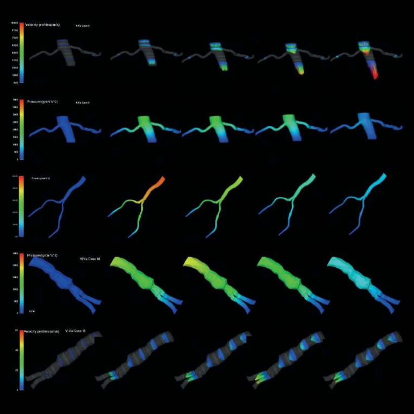 First personalized medical simulations of blood flow