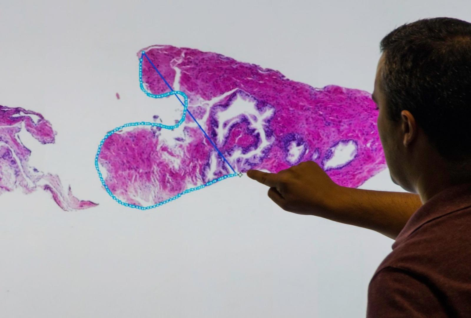 CRS4 Digital Pathology